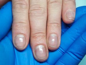 paznokcie-przed-przedluzenienm